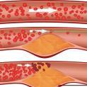 Hypercholestérolémie et inhibiteurs de PCSK9